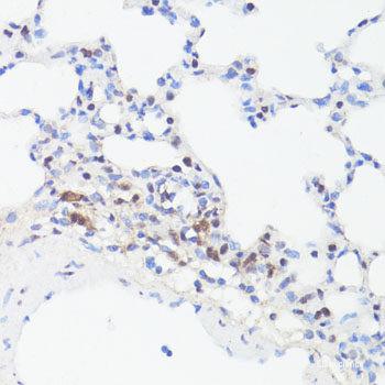 Anti-phospho-MYC(Ser62)