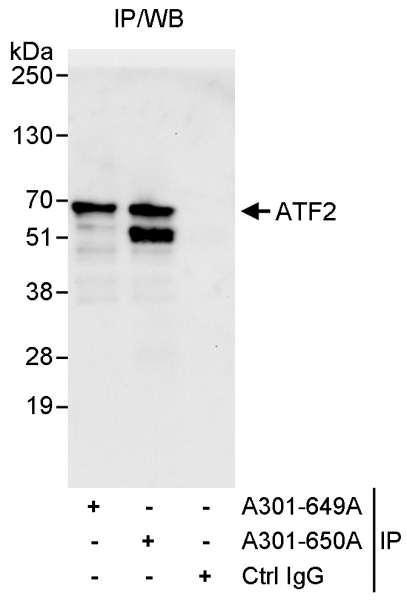 Anti-ATF2