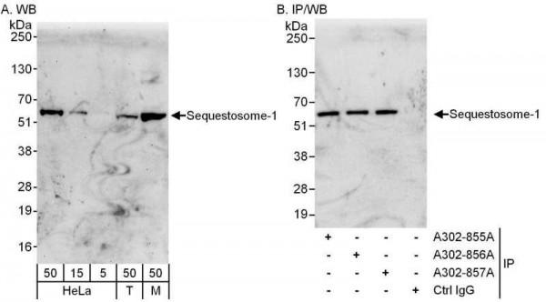 Anti-Sequestosome-1