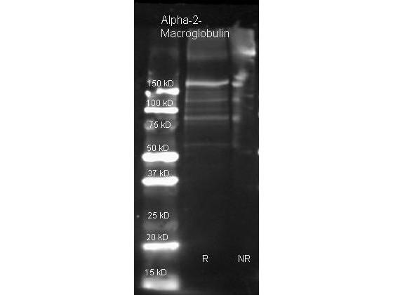 Anti-alpha2 Macroglobulin (human plasma)