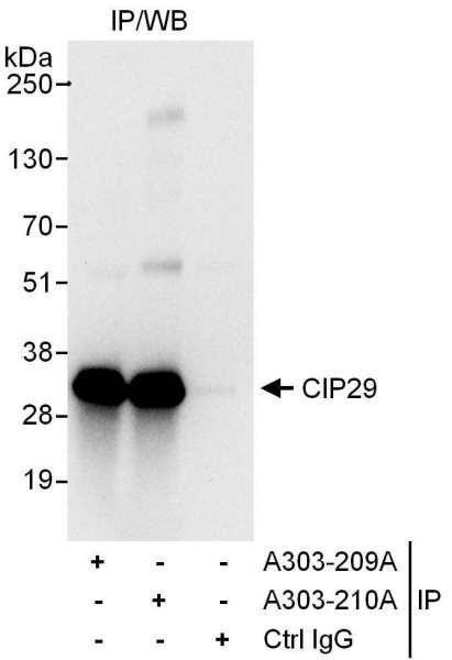 Anti-CIP29