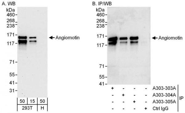 Anti-Angiomotin