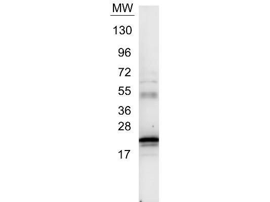 Anti-Interleukin-6 (IL-6) (human)