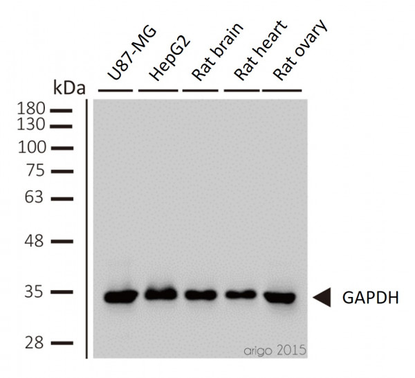 Loading Control Antibody Panel (Actin, beta Tublin, Histone H3, GAPDH)