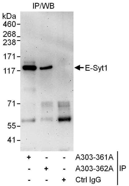 Anti-E-Syt1