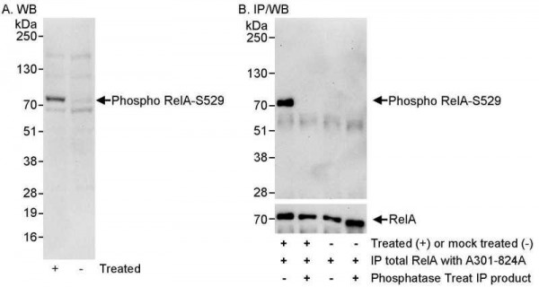 Anti-phospho-RelA (Ser529)