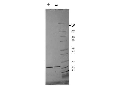 Interferon-alpha 2b