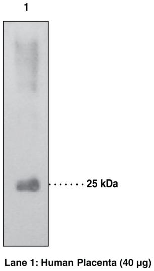 Anti-15-hydroxy Prostaglandin Dehydrogenase