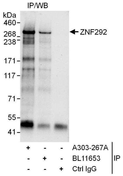 Anti-ZNF292