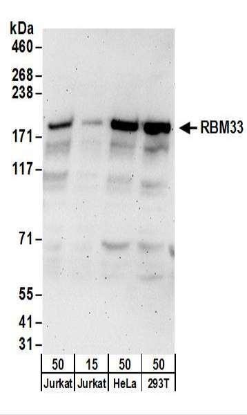 Anti-RBM33