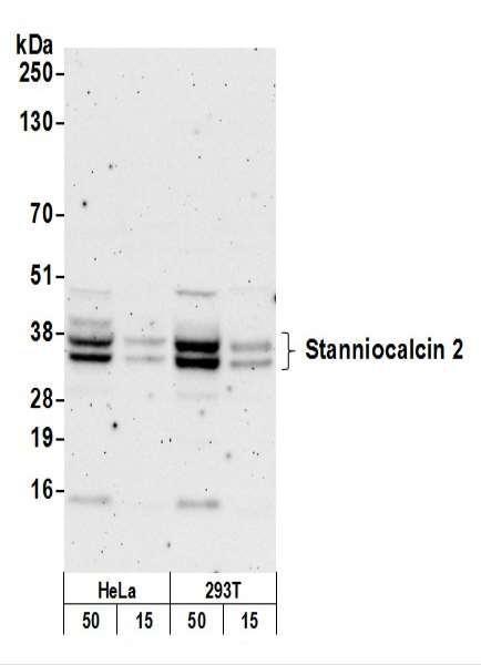 Anti-Stanniocalcin 2