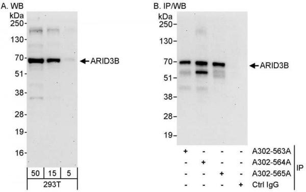 Anti-ARID3B
