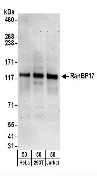 Anti-RanBP17
