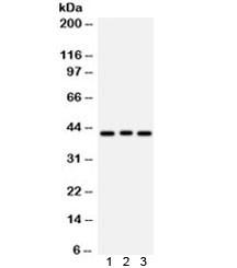 Anti-Ataxin 3 / ATXN3