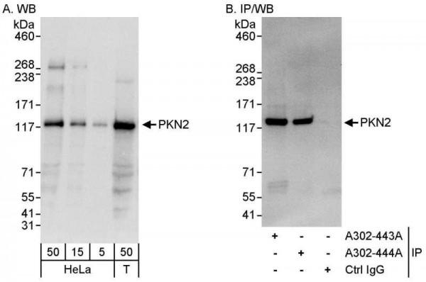Anti-PKN2