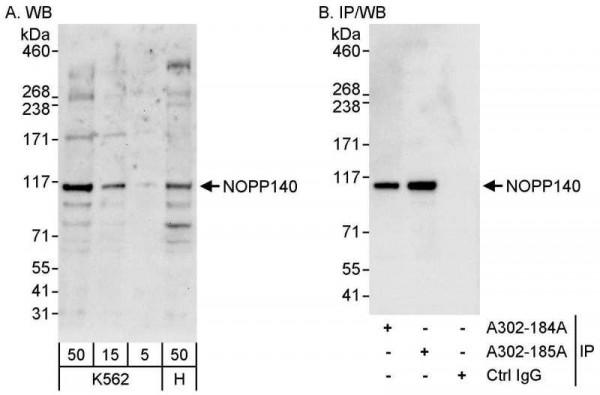 Anti-NOPP140