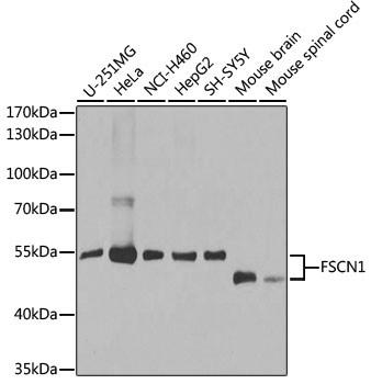 Anti-FSCN1