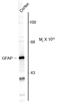 Neuroinflammation Antibody Panel
