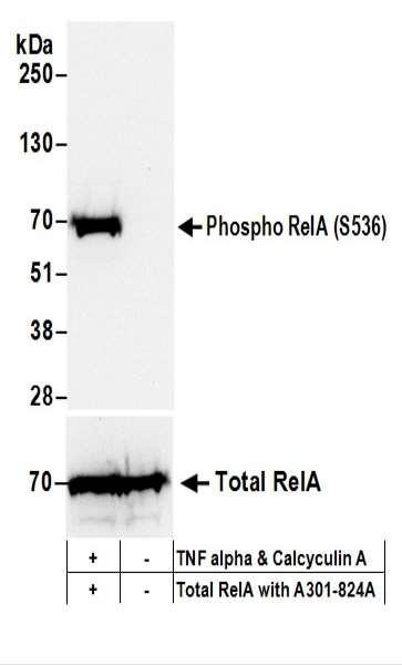 Anti-phospho-RelA (Ser536)