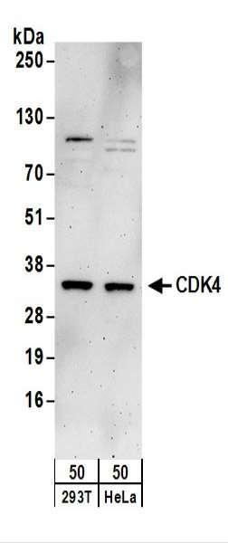Anti-CDK4
