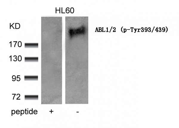 Anti-phospho-ABL1/2 (Tyr393/439)