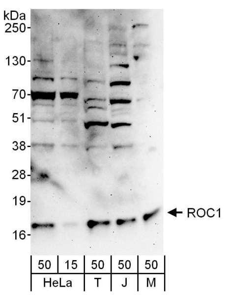 Anti-ROC1