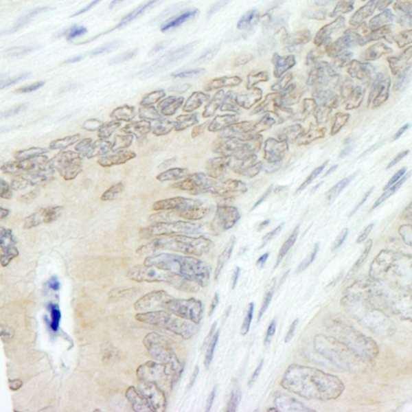 Anti-Lasu1/Ureb1 (IHC)