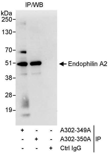 Anti-Endophilin A2