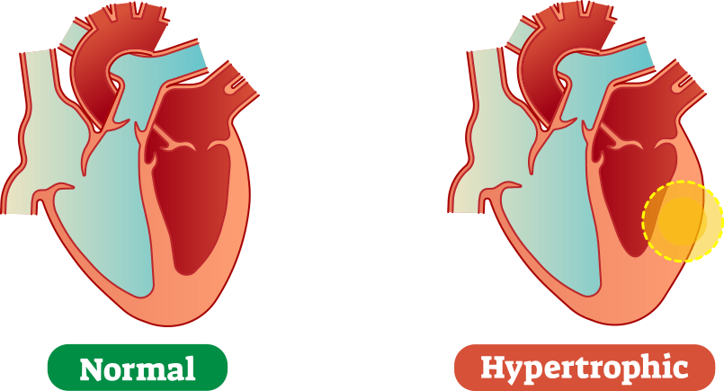 Hypertrophic-vs-Normal-Heart