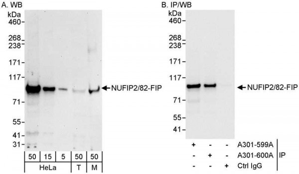 Anti-NUFIP2/82-FIP