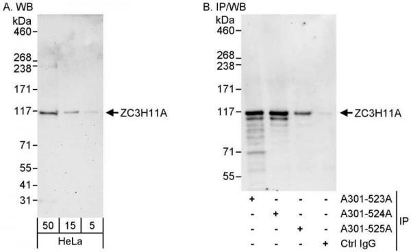 Anti-ZC3H11A