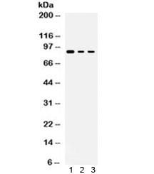 Anti-Ataxin 1 / ATXN1