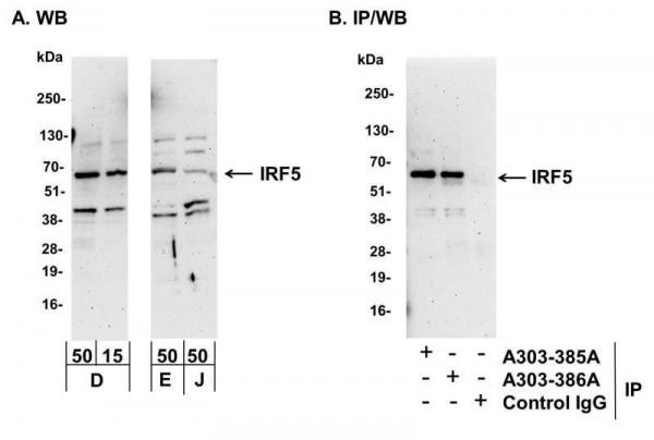Anti-IRF5