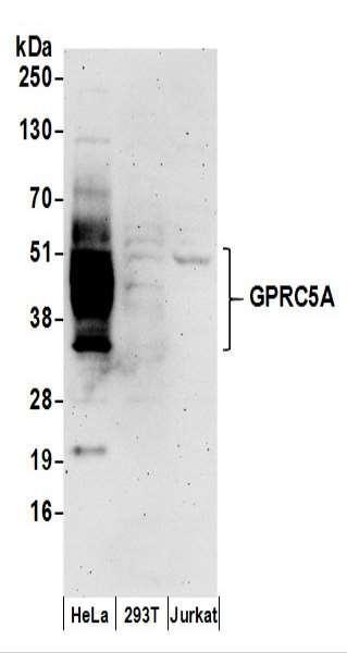 Anti-GPRC5A