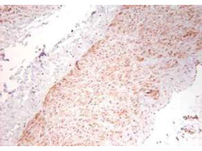 Anti-Tumor Necrosis Factor alpha (TNFa)
