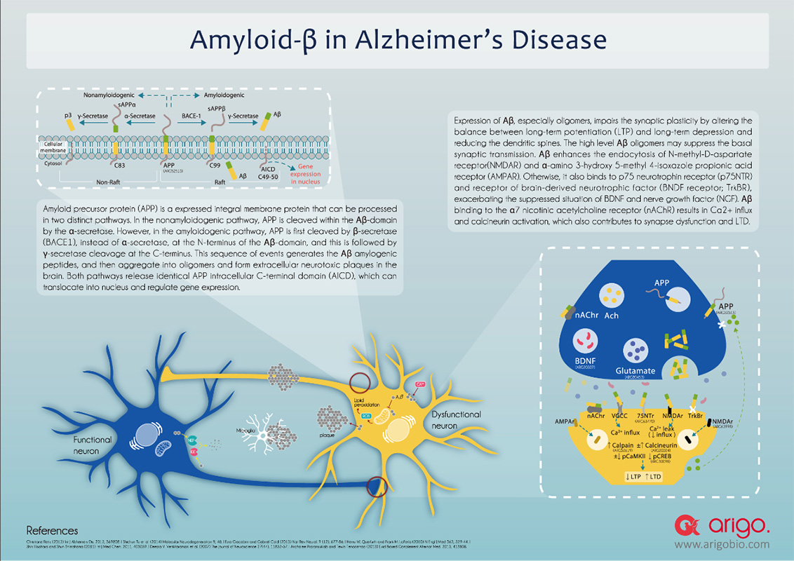 Amyloid-beta in Alzheimer's Disease