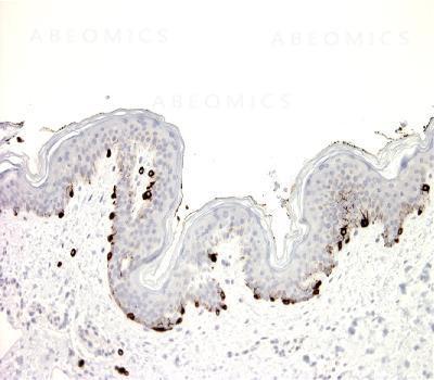 Anti-Melan A (Clone: BS52)