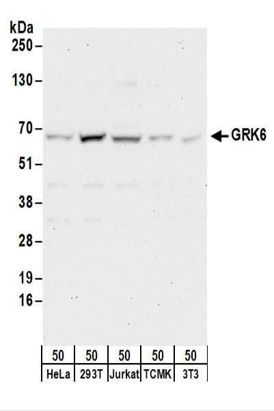 Anti-GRK6