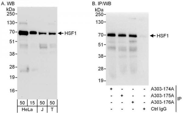 Anti-HSF1